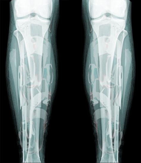 The endoskeleton of UltraLeague athlete Daedum Carius